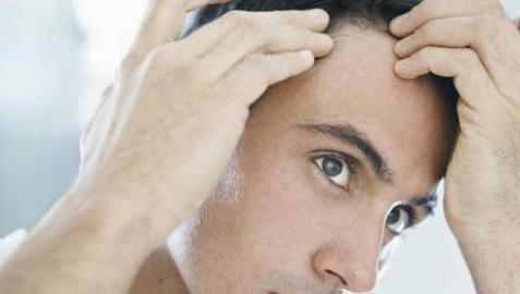 El problema más habitual es la alopecia androgenética.